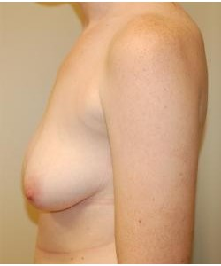 Breast Asymmetry Correction Before & After Photo
